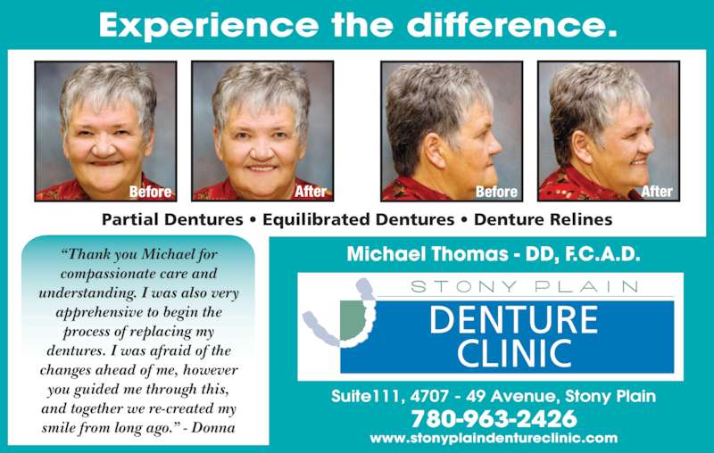 """Stony Plain Denture Clinic (780-963-2426) - Display Ad - Experience the difference. Michael Thomas - DD, F.C.A.D. Partial Dentures • Equilibrated Dentures • Denture Relines DENTURE CLINIC Suite111, 4707 - 49 Avenue, Stony Plain 780-963-2426 www.stonyplaindentureclinic.com Before After Before After """"Thank you Michael for  compassionate care and  understanding. I was also very  apprehensive to begin the  process of replacing my  dentures. I was afraid of the  changes ahead of me, however  you guided me through this,  and together we re-created my  smile from long ago."""" - Donna"""