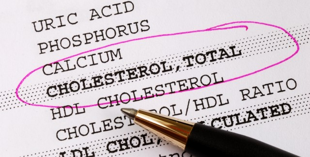 A simple guide to cholesterol testing