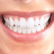 Tooth veneers can help you get your bright smile back