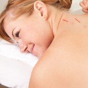 The benefits of acupuncture and how it can be used to increase your fertility