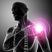 Glucosamine and chondroitin: Weighing the claims and the research on arthritis