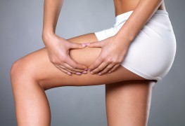 Answers to your questions about cellulite