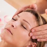 Alternative medications for migraines