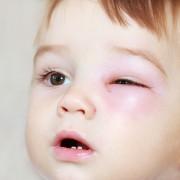 Bid farewell to embarrassing eye swelling and discomfort