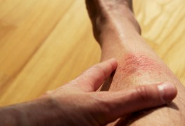Helpful tips for controlling eczema through diet