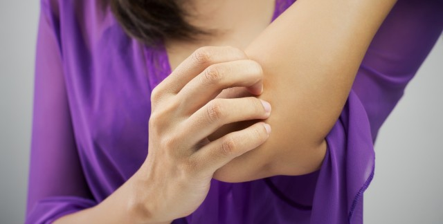 3 simple steps to eczema relief