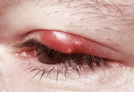 How to help soothe the discomfort of painful eye styes