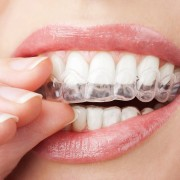 A comprehensive guide to clear braces