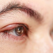 Dealing with blepharitis