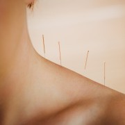 How acupuncture could help your cold