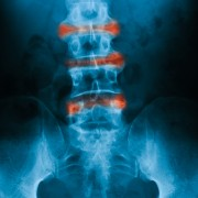 Ankylosing spondylitis: diagnosis and treatment