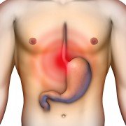 The best remedies for heartburn