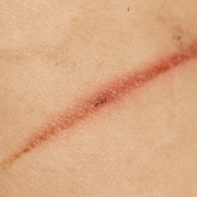 Home remedies to heal burns and scalds