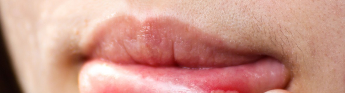 What causes lip canker sores? | Smart Tips