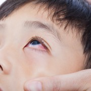 Tips for treating pink eye
