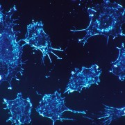 5 new options for treating prostate cancer