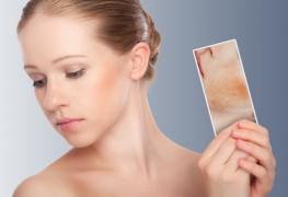 Comment traiter les rougeurs au visage