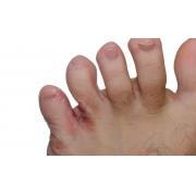 Remède efficace : l'huile de melaleuca pour traiter les pieds d'athlète