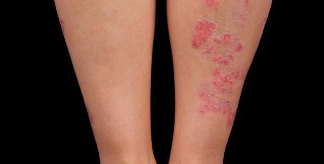 Comment traiter le psoriasis?