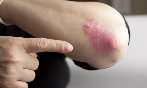 Leczéma que faire avec la peau de mains