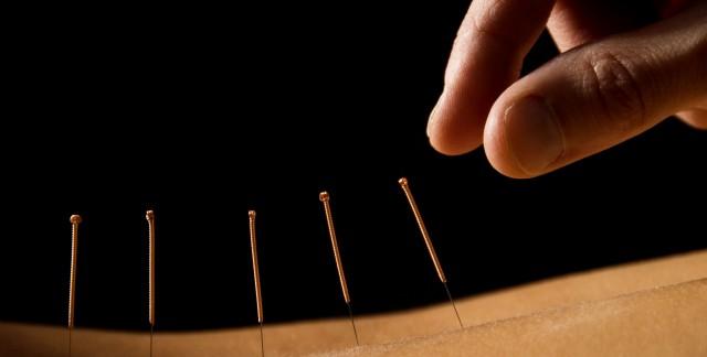 4 façons dont l'acupuncture peut accompagnerla grossesse
