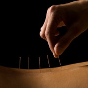 Traitements alternatifs du diabète: l'acupuncture peut-ellefaire baisservotreglycémie?