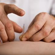 Traiter l'anxiété et le stress parl'acupuncture