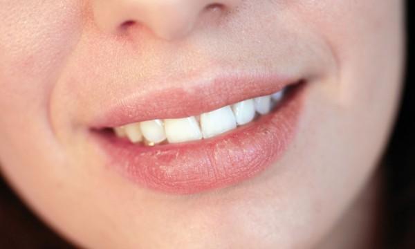 Scheresse de la bouche : dfinition, symptmes et causes
