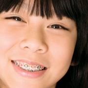 Les broches dentaires, c'est aussi pour les adultes!