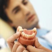 L'implant dentaire : ni vu ni connu!