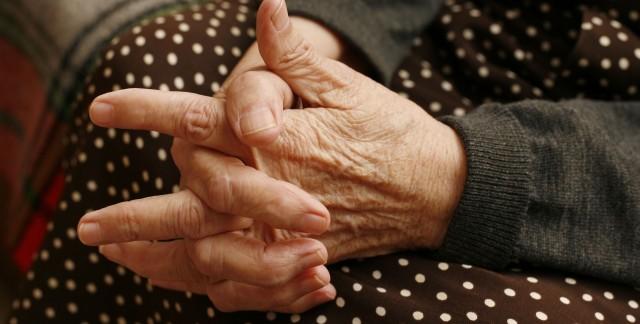 Polyarthrite rhumatoïde :gestion des poussées etsimilarités avec l'arthrose