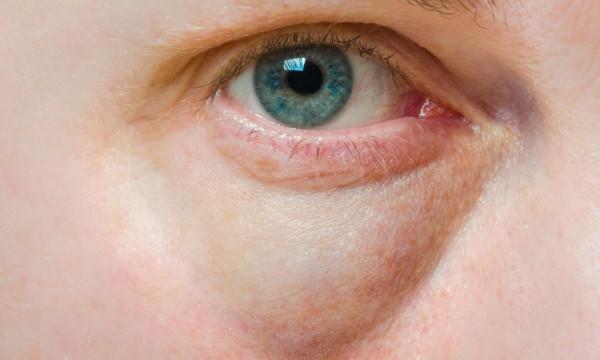 Les masques nutritif pour la personne et sur les yeux