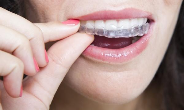laver gouttière dentaire