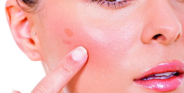 Are brown spots on my skin dangerous?