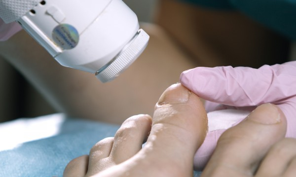 Say goodbye to nail fungus forever