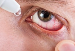 My eyes feel scratchy and irritated. What can I do about my dry eyes?