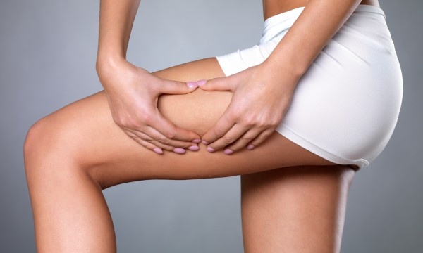 4 questions every woman should ask about cellulite