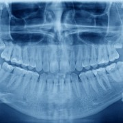 Should I have my wisdom teeth extracted?
