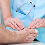A simple guide to understanding bunions