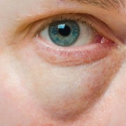 Simple home remedies for baggy eyes