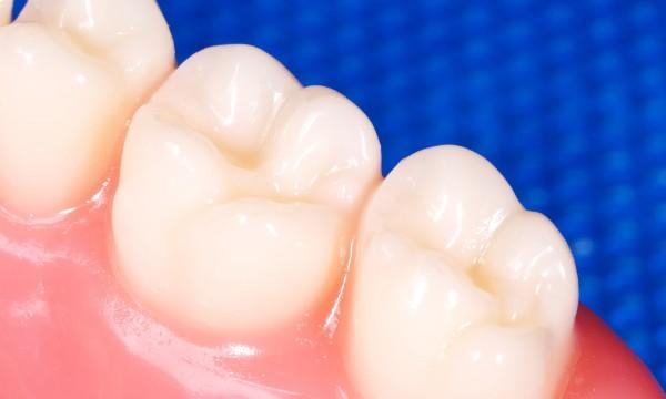 Treating gum disease
