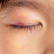 How to deal with an eye stye
