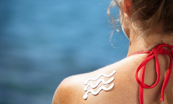 Natural treatments for hives, sunburns and blisters
