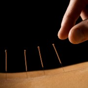 4 ways acupuncture helps with pregnancy
