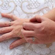 Sensitive skin? Why you should wear hypoallergenic jewellery