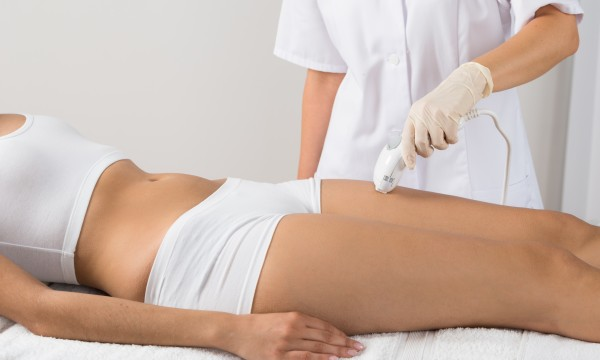 4 factors to consider before laser hair removal