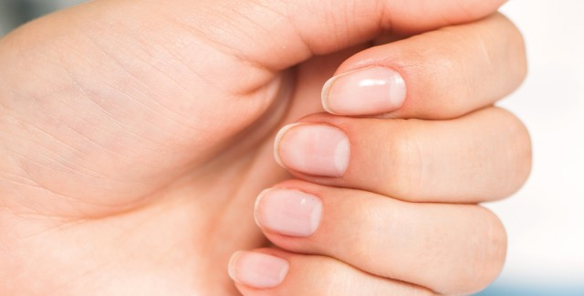 Strong solutions for brittle nails