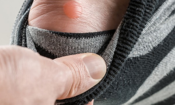 Should you pop a blister on your foot?