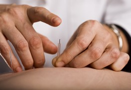 Treating anxiety and stress with acupuncture