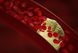 Peripheral vascular disease: Heart disease in your legs